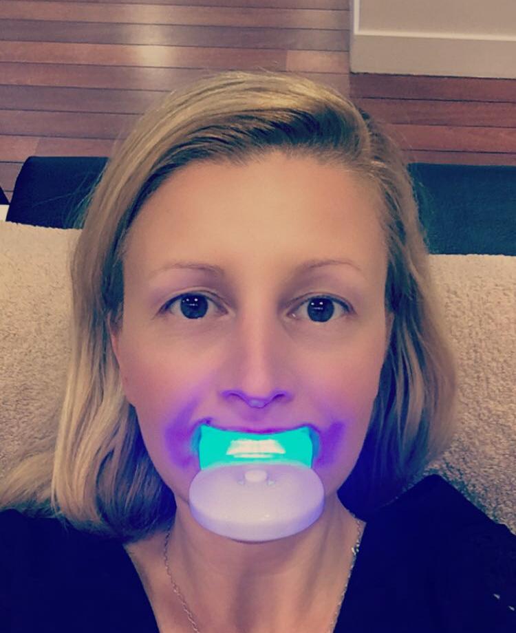 retrouvez-un-sourire-100-white-snapchat